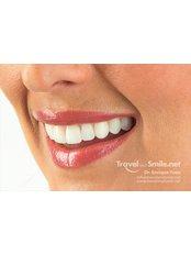 Veneers - Peru Dental
