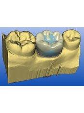 CAD/CAM Dental Restorations - Peru Dental