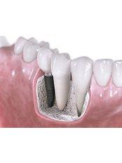 Bone Graft  - Peru Dental