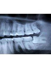 Wisdom Tooth Extraction - Peru Dental