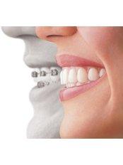 Braces - Peru Dental