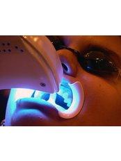 Teeth Whitening - Peru Dental
