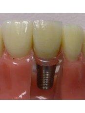 Mini Implants - Peru Dental