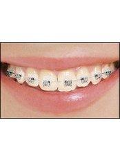 Damon™ Braces - Peru Dental