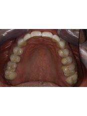 Dental Bridges - Peru Dental