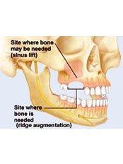 Sinus Lift - Peru Dental