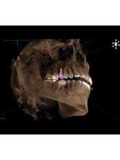 3D Dental X-Ray - Peru Dental