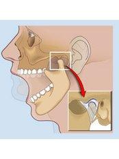 TMJ - Temporomandibular Joint Treatment - Peru Dental