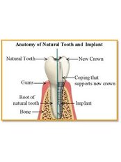Anatomy of a Dental Implant - Smiles Peru