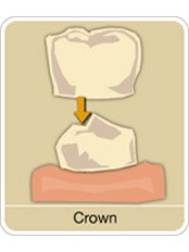 Dental Crowns - Smiles Peru
