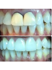 Permanent Bridge - The Dental Clinic & GT Concept Asociados