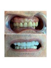 Dental Crowns - The Dental Clinic & GT Concept Asociados