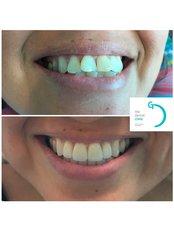 Veneers - The Dental Clinic & GT Concept Asociados