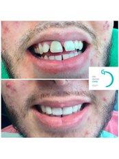 Porcelain Veneers - The Dental Clinic & GT Concept Asociados