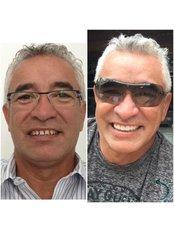 Implant Bridge - The Dental Clinic & GT Concept Asociados