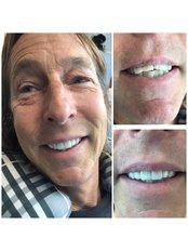 Zirconia Crown - The Dental Clinic & GT Concept Asociados
