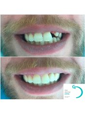 Chipped Tooth Repair - The Dental Clinic & GT Concept Asociados