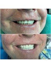 Porcelain Crown - The Dental Clinic & GT Concept Asociados