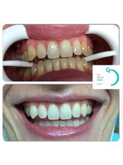 Teeth Whitening zoom Philips - The Dental Clinic & GT Concept Asociados