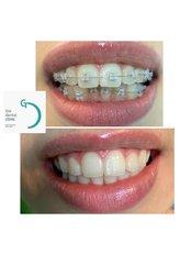 Ceramic Braces - The Dental Clinic & GT Concept Asociados