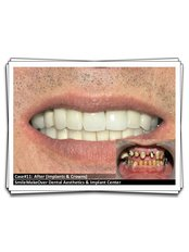 Dental Implants - Smile Make Over Dental & Aesthetic Center