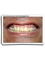 Veneers - Smile Make Over Dental & Aesthetic Center