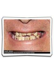Dental Crowns - Smile Make Over Dental & Aesthetic Center