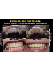 Dental Bridges - Winsome Smile Today
