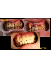 Fixed Partial Dentures - Winsome Smile Today