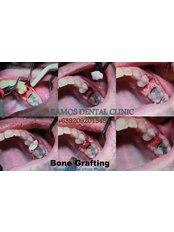 Bone Graft  - Winsome Smile Today