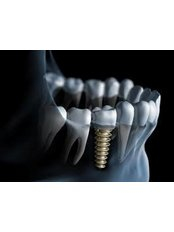Dental Implants - Winsome Smile Today