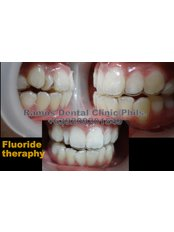 Fluoride Therapy - Winsome Smile Today