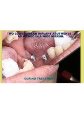Implant Bridge - Winsome Smile Today