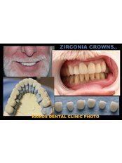 Zirconia Crown - Winsome Smile Today