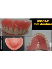 Full Dentures - Winsome Smile Today