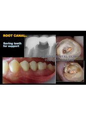 Root canals - Winsome Smile Today
