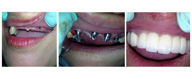 Pangasinan Dental Implant Oral Surgery In Dagupan City Philippines