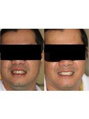 Dental Bridges - Premier Dental Care Solutions
