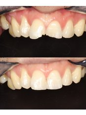 Dental Bonding - Premier Dental Care Solutions