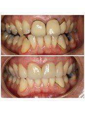 Dental Crowns - Premier Dental Care Solutions