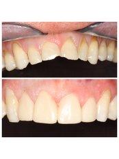 Veneers - Premier Dental Care Solutions