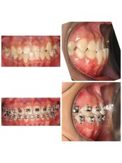 Braces - Premier Dental Care Solutions