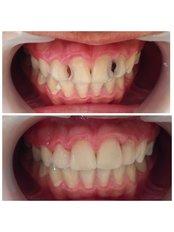 Fillings - Premier Dental Care Solutions