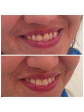 Dentures - Premier Dental Care Solutions