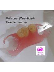 Flexible Partial Dentures - Flores Dental Makati City