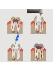 Molar Root Canal - My Dental Space