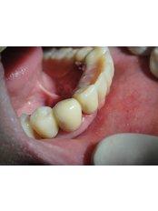 Overdentures - My Dental Space