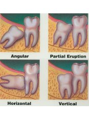 Wisdom Tooth Extraction - My Dental Space