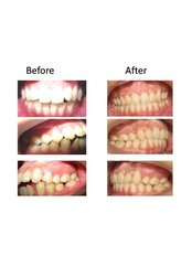 Orthodontist Consultation - Healthy Teeth Happy Family Wellness Center