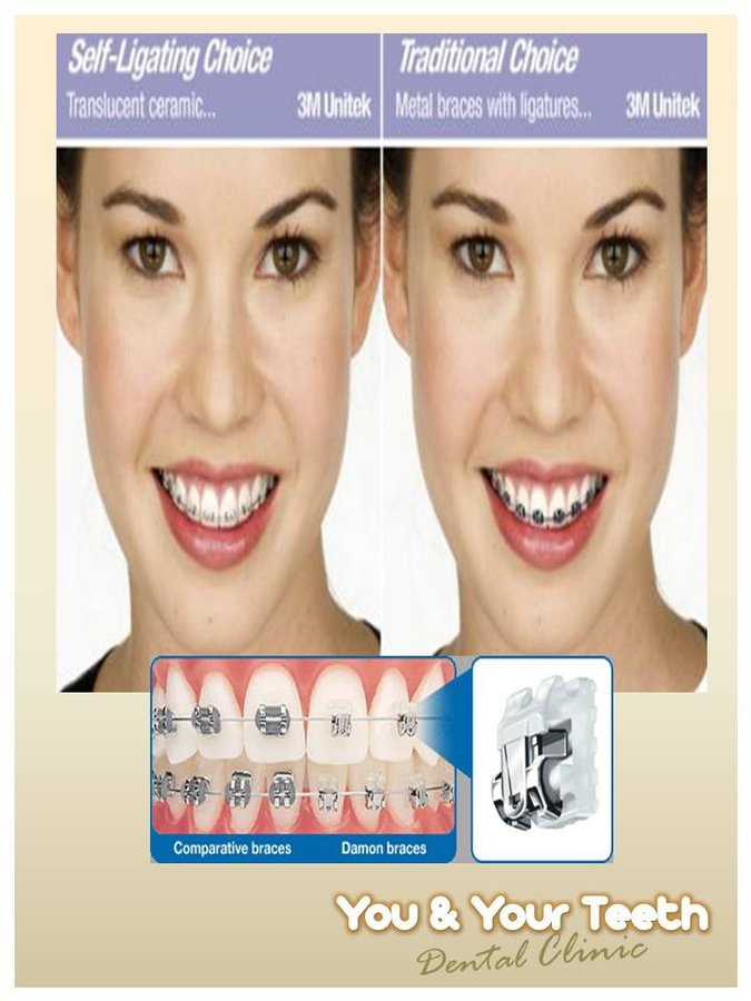 You And Your Teeth Dental Clinic In Quezon City Philippines